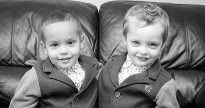 Diese Zwillinge sind etwas ganz Besonderes