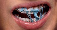 7 Momente, mit einer festen Zahnspange