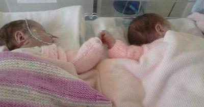 Unglaublich wie diese beiden winzigen Zwillinge gegen den Tod kämpften