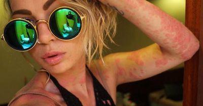 Ihre Haut ist mit einem schrecklichen Ausschlag übersäht, doch sie macht etwas Besonderes daraus...