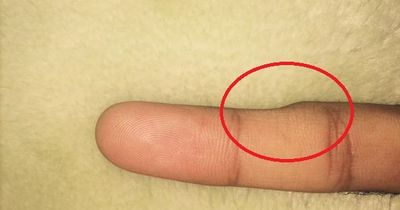 Tausende Menschen entdecken DIESE Delle am kleinen Finger - DAS ist der unglaubliche Grund