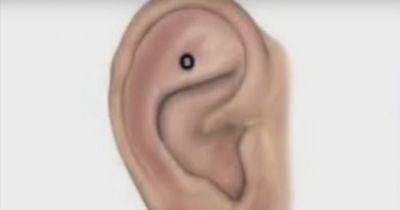 DAS passiert, wenn du DIESEN Punkt an deinem Ohr massierst!
