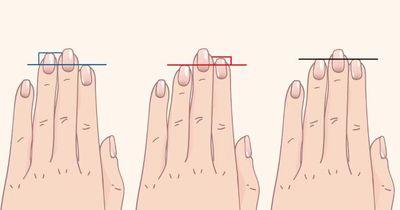 Hast du dir deine Hand mal genauer angeschaut?