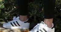 Achtung, Mädels: DARUM machen Leggings krank