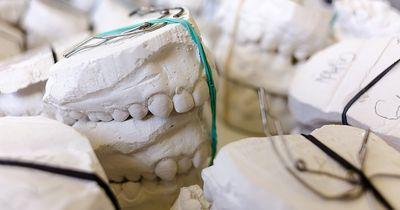 Das sind die Folgen, wenn Du nicht regelmäßig Zähne putzt!