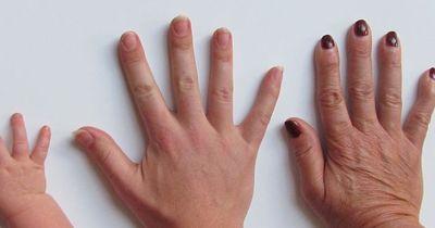 So dürfen eure Fingernägel nicht aussehen!